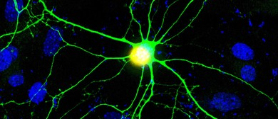 Thirst for Knowledge: Brain Plasticity