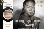 Image for event: Cosmetic Tattoo Removal Education