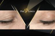 PhiLings Plasma Training