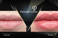 Phinjection Training