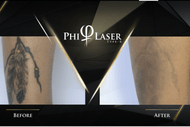 Image for event: PhiLaser Tattoo Removal Training